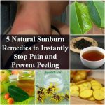 5 Natural Sunburn Remedies to Instantly Stop Pain and Prevent Peeling