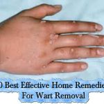 10 Best Effective Home Remedies For Wart Removal