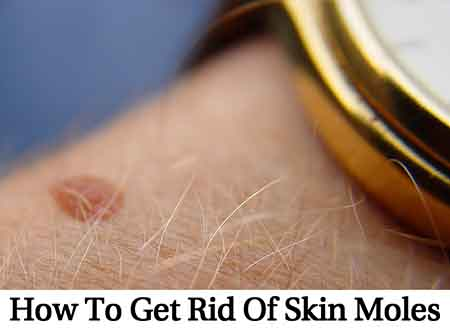 How To Get Rid Of Skin Moles Lil Moo Creations
