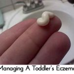 Managing A Toddler's Eczema