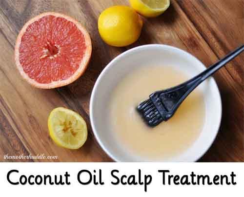 dry scalp remedies coconut oil