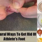 10 Natural Ways To Get Rid Of Athlete's Foot