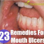 23 Home Remedies For Mouth Ulcers