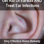 Home Remedy For Earwax & Ear Infections