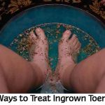 10 Ways to Treat Ingrown Toenails
