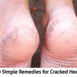 10 Simple Remedies for Cracked Heels