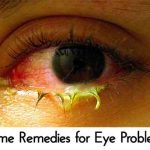 Home Remedies for Eye Problems