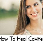 How To Heal Cavities