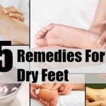 5 Remedies For Dry Feet