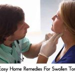 6 Easy Home Remedies For Swollen Tonsils