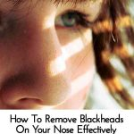 How To Remove Blackheads On Your Nose Effectively