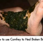 How to use Comfrey to Heal Broken Bones