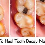 How To Heal Tooth Decay Naturally