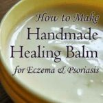 How To Make Handmade Healing Balm for Eczema & Psoriasis
