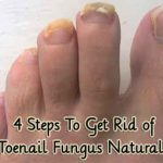 4 Steps To Get Rid of Toenail Fungus Naturally