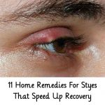 11 Home Remedies For Styes That Speed Up Recovery