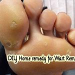DIY Home remedy for Wart Removal