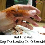 Best First Aid: Stop The Bleeding In 10 Seconds!